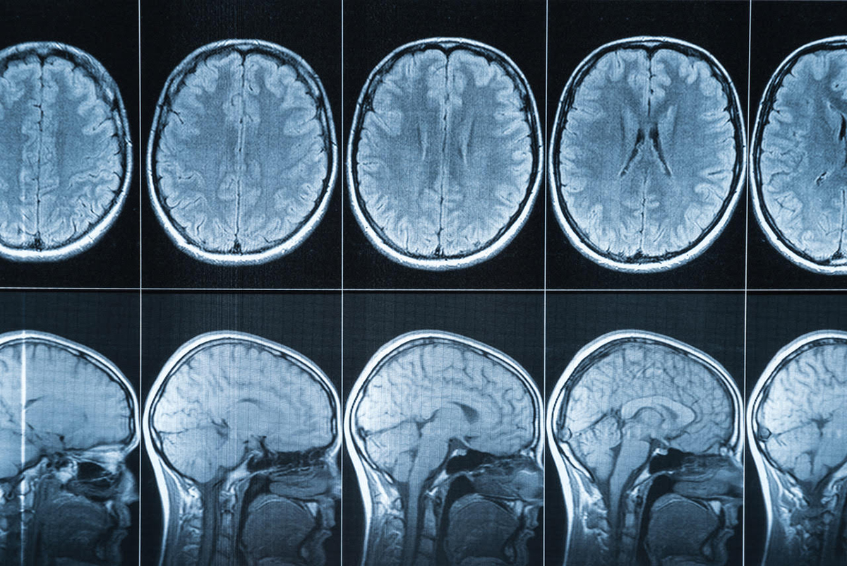 Neglecting Neuroscience Has Criminal >> Science Denial Won T End Sexism Quillette