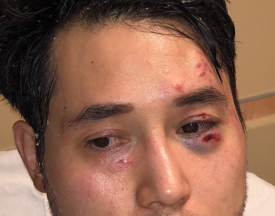 Antifa S Brutal Assault On Andy Ngo Is A Wake Up Call For